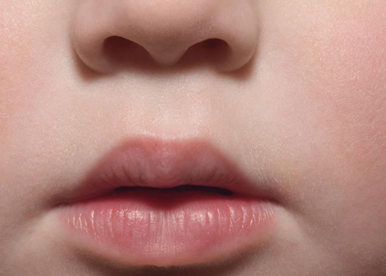 La Roche Posay By Need Children Lip care